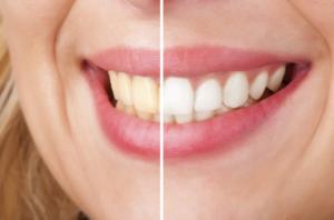 take-home-teeth-whitening_big