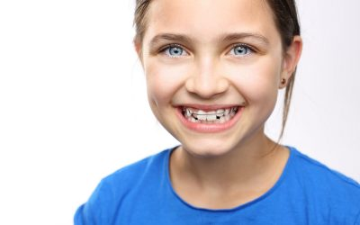 At What Age Should Children See an Orthodontist?